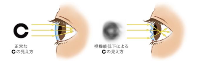 ドライアイによる視力低下