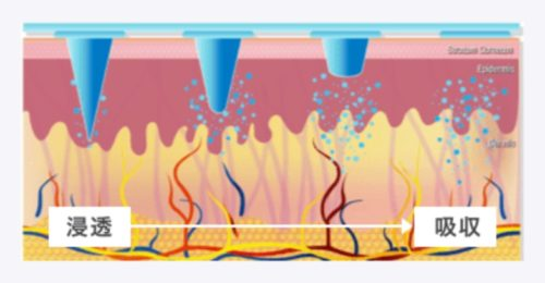 マイクロニードルパッチは角質層に直接成分を届ける